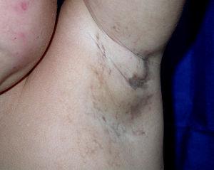 Axillary Pigmentation