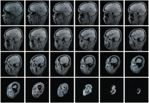 Magnetic resonance imaging (MRI) series of a h...