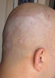 English: Picture of Seborrhoeic Dermatitis.