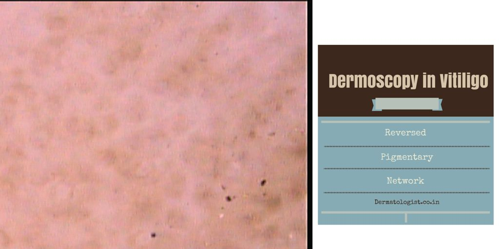 Dermoscopy in Vitiligo
