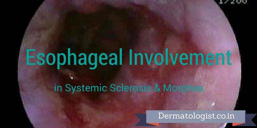 Esophageal Involvement in Systemic Sclerosis & Morphea