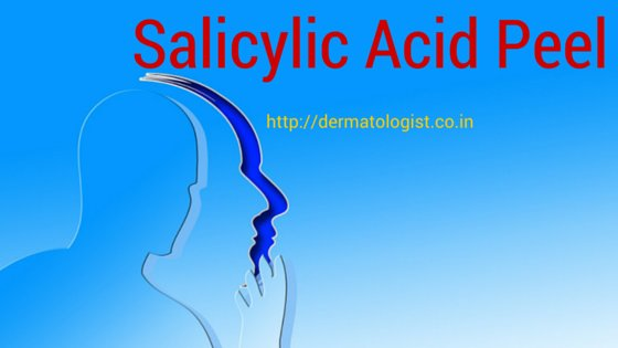 Chemical Peel with Salicylic Acid