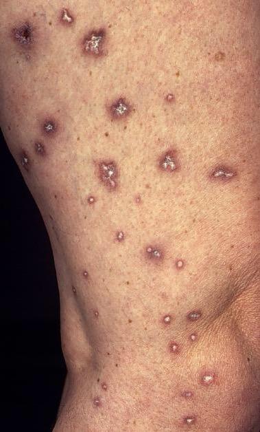 Degos disease